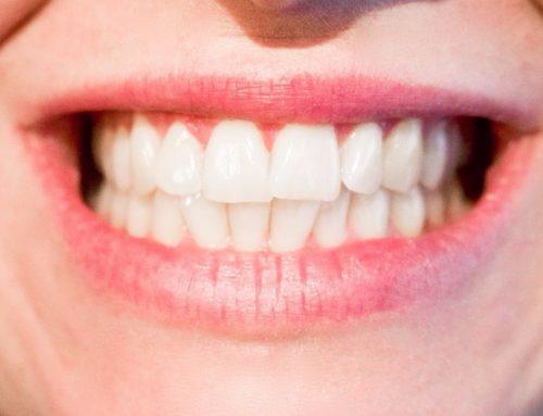 Blanqueamiento dental, preguntas frecuentes