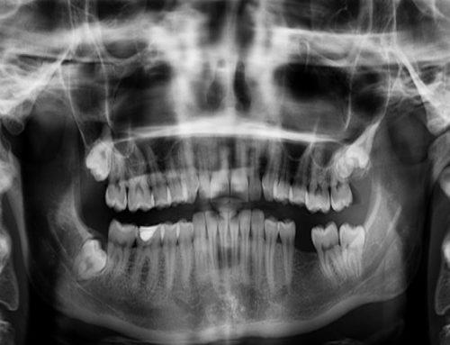 Odontología y Rayos X