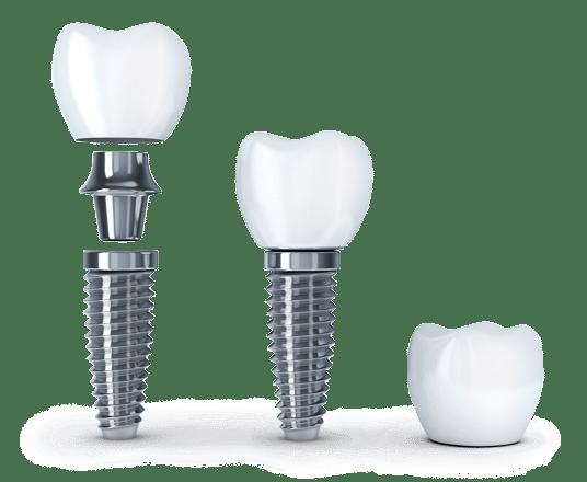 implantes dentales Oviedo