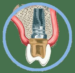 Implante dental dentista en oviedo
