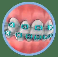 ortodoncia en oviedo