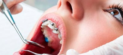ortodoncia dental en oviedo