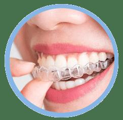 Financiación dentista en Oviedo